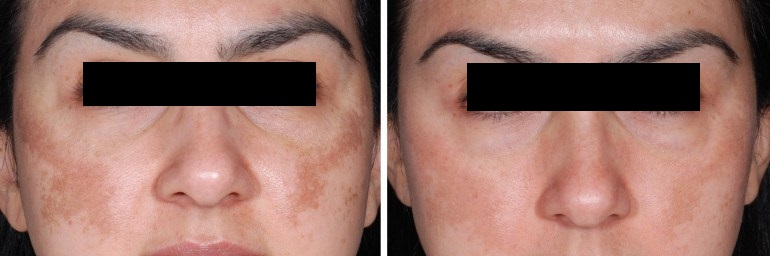 dermapen-before-after-las-vegas-1