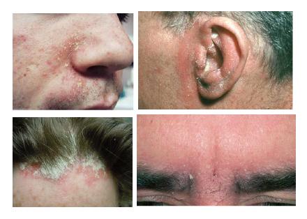 Seborrheic-dermatitis